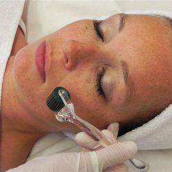 dermaroller-foto-behandeling