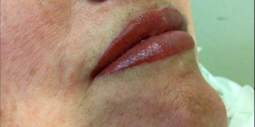 lip1s